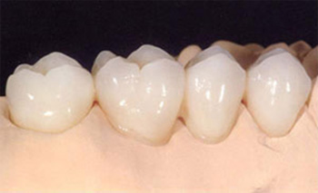 Cerec-crowns-on-molars