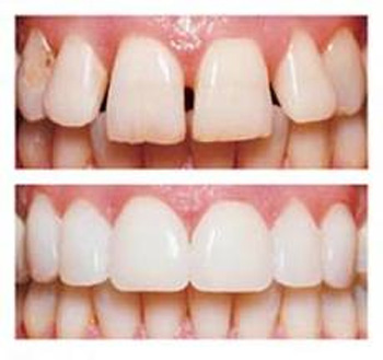 before-and-after-veneers