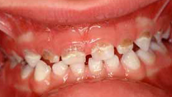 infant tooth decay